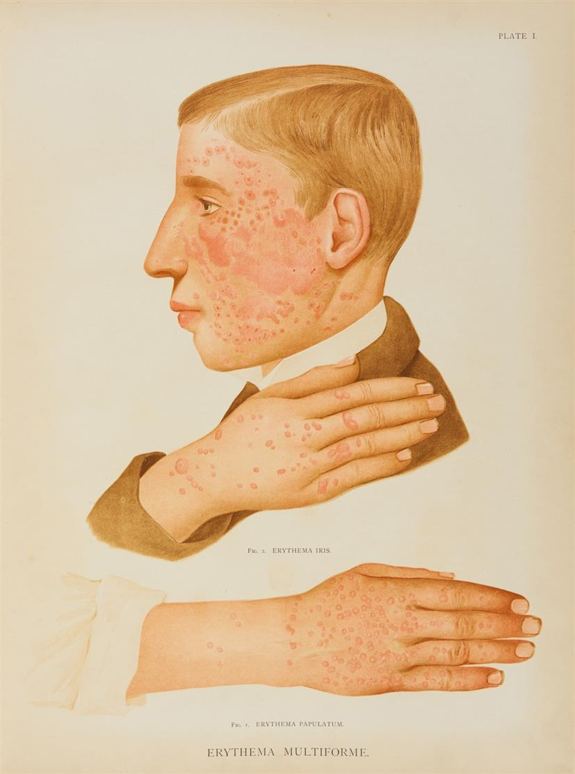 H. R. Crocker, Atlas of the diseases of the skin... 2 Bde. Edinburgh u. a. 1896.