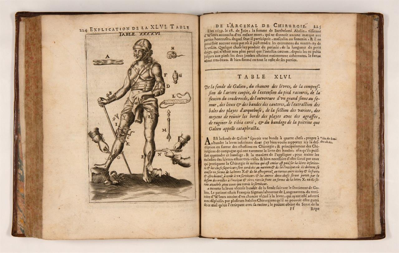 J. Scultetus, L'arcenal de chirurgie. 2. franz. Aufl. Lyon 1674.